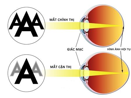 Bệnh viện mắt chữa mắt bị cận