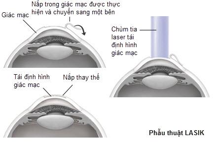 phương pháp phẫu thuật lasik