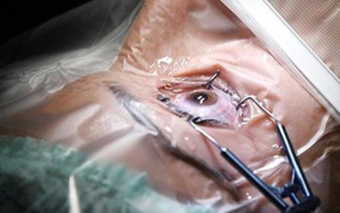 Phẫu thuật đục thuỷ tinh thể
